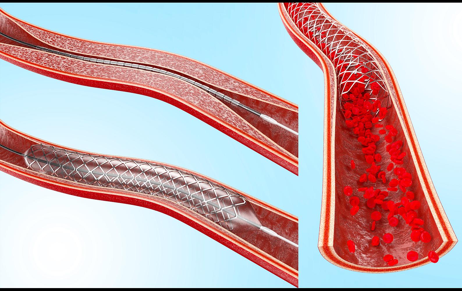 illustration-3D-philippe-raimbault-artere
