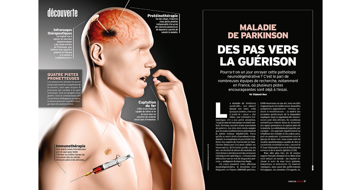 illustration-3D-philippe-raimbault-lexpress-parkinson-medical-04