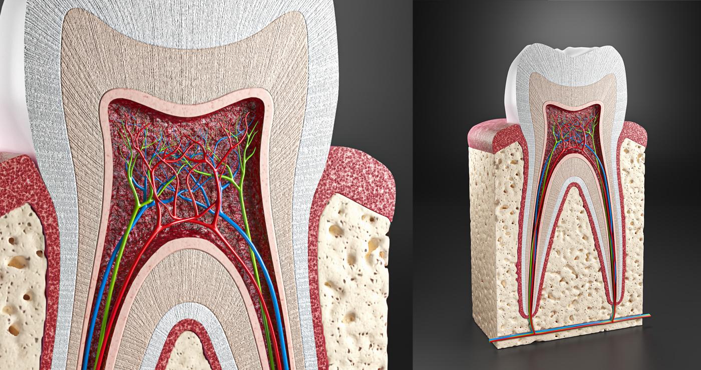 illustration 3D philippe raimbault medical dent coupe 06