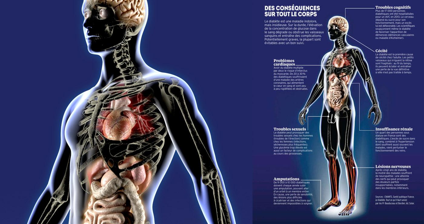 illustration-3D-philippe-raimbault-medical